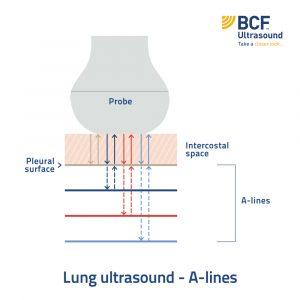 A-line_Lung ultrasound