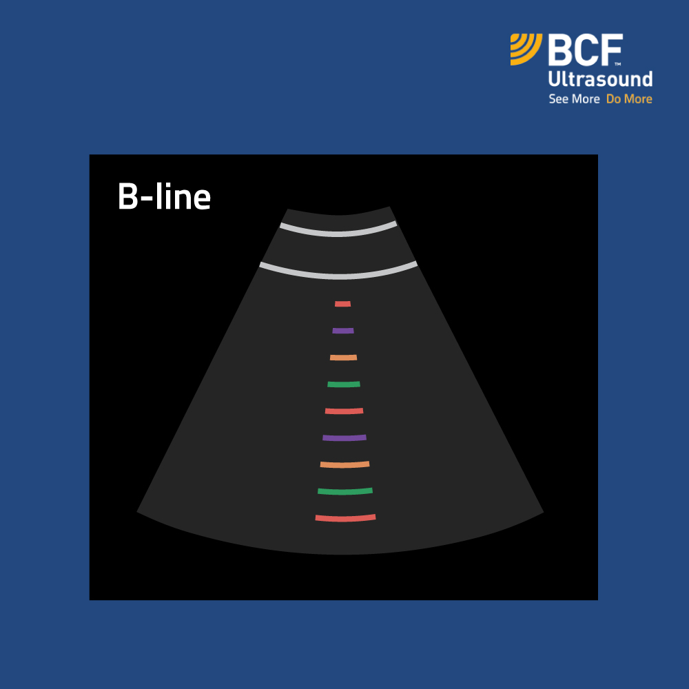 ABCs of Lung Ultrasound | B is for… B-lines