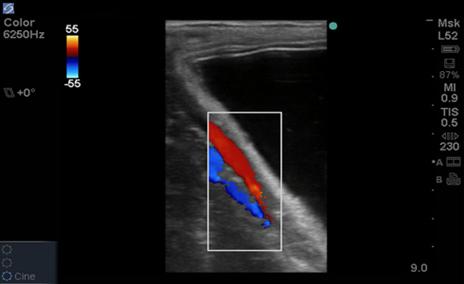 Equine Doppler Study of vessel adjacent to utero placental unit L52